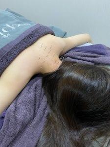 痛症治療-註冊中醫針灸