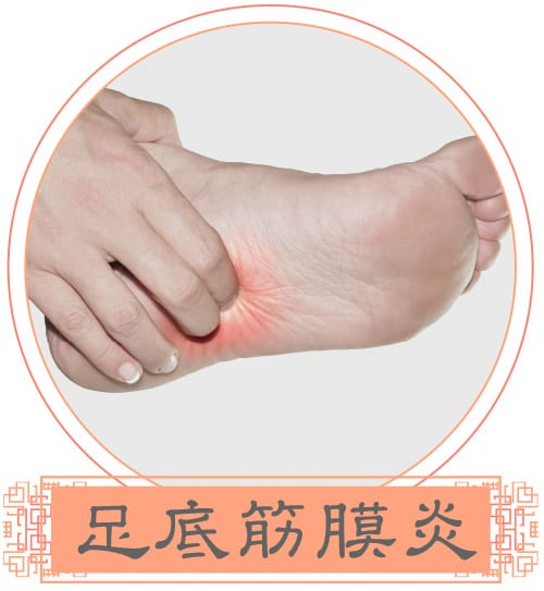 InLife_20210323_InLife-web-design-acupuncture_image08