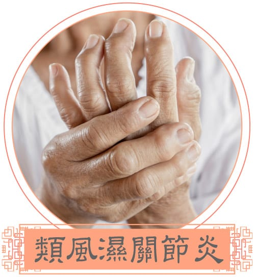 InLife_20210323_InLife-web-design-acupuncture_image09