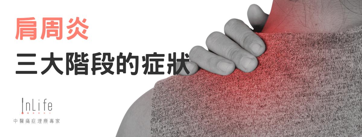 肩周炎三大階段的症狀
